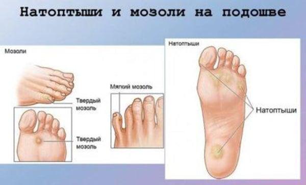Mozoli-i-natoptyshi
