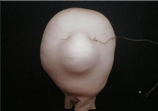 S-pomoshhju-niti-formiruetsya-perenosica